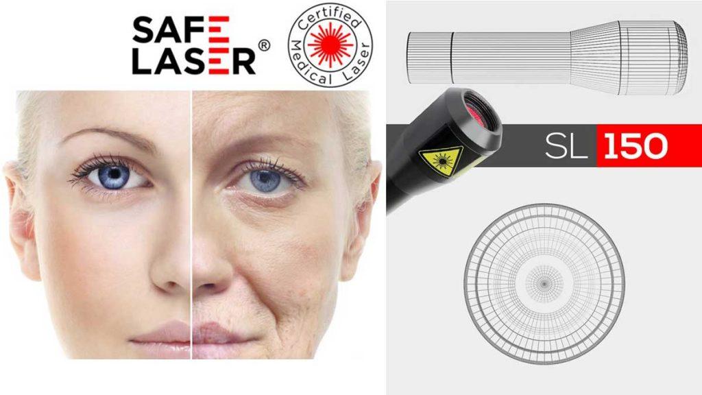 Safe Laser kozmetikai kezelő