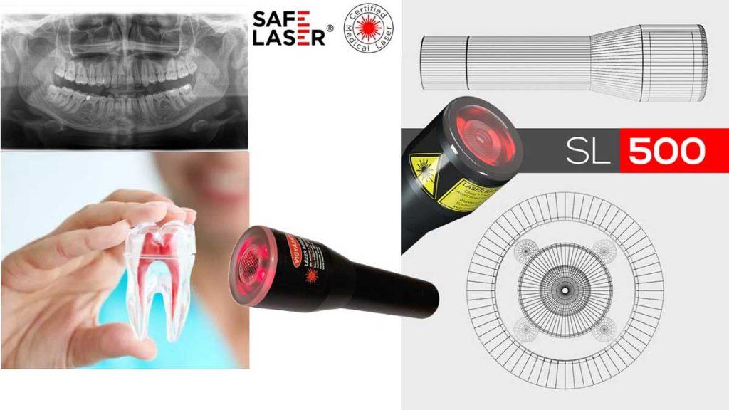 Fogmentés Safe Laser készülékkel