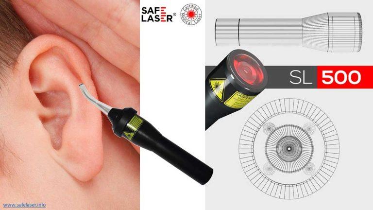 Visszatérő fülprobléma kezelése SAFE LASER-rel